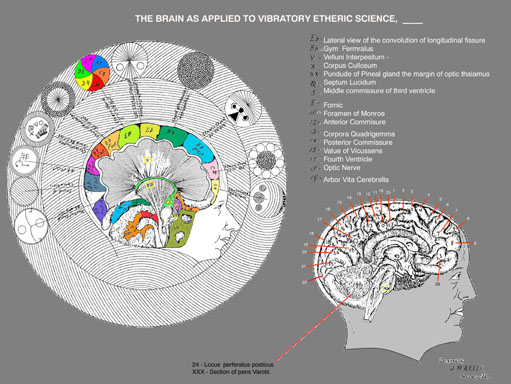 Acoustic Resonance of the Brain