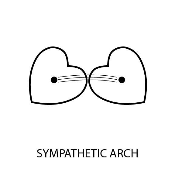 Sympathetic Arch